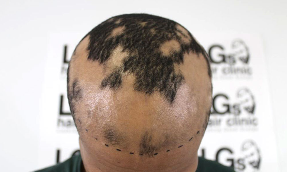 Alopecia hair clinic
