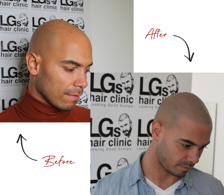Scalp Micropigmentation services